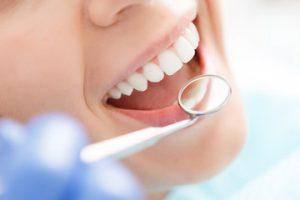 miglior-dentista-genova